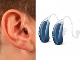 picture of open fit hearing aids