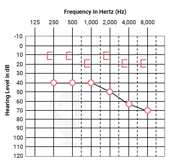 Conductive hearing loss audiogram