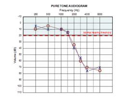 Hearing loss high frequency distortion precio