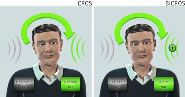 bicros_cros