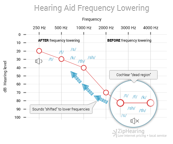 frequency-lowering-hearing-aid