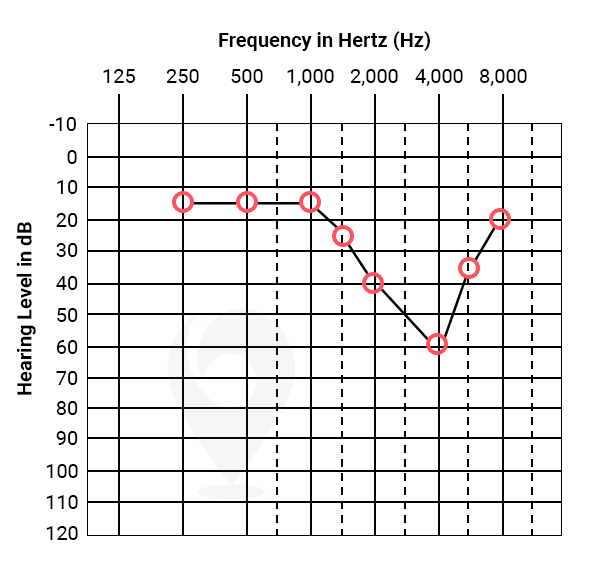 Noise notch audiogram indicative of noise induced hearing loss