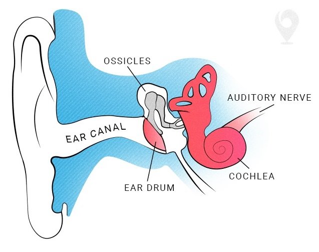 Sensorineural hearing loss diagram